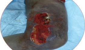 内分泌科典型案例